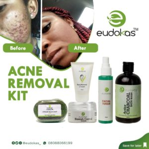 Eudokas Acne Treatment Kit