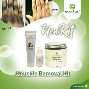 Knuckle Removal Kit